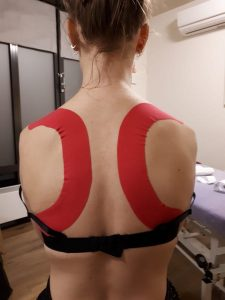 Kinesio_taping_Purmerend_fysiotherapeut